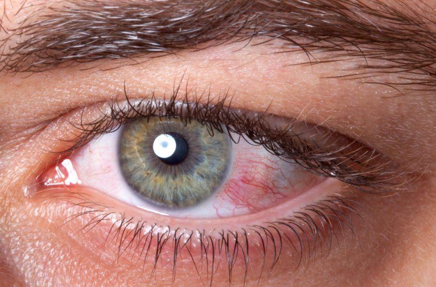 ¿Es posible contagiarse de Coronavirus por los ojos?