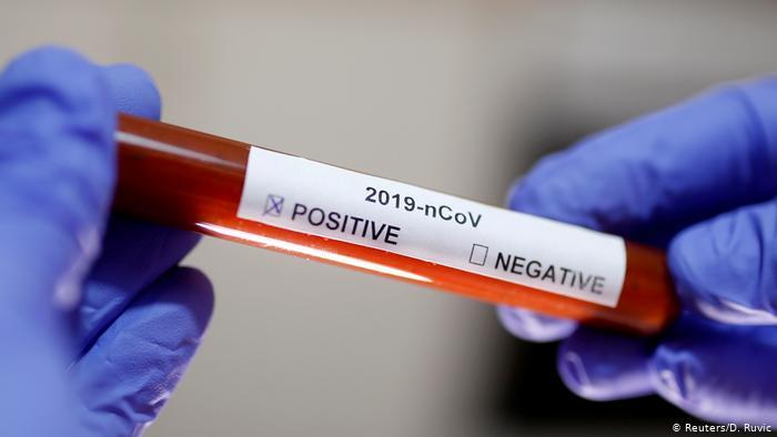 Nuevo triste registro para Chile: 5.246 nuevos contagiados y 93 fallecidos por causas del Coronavirus