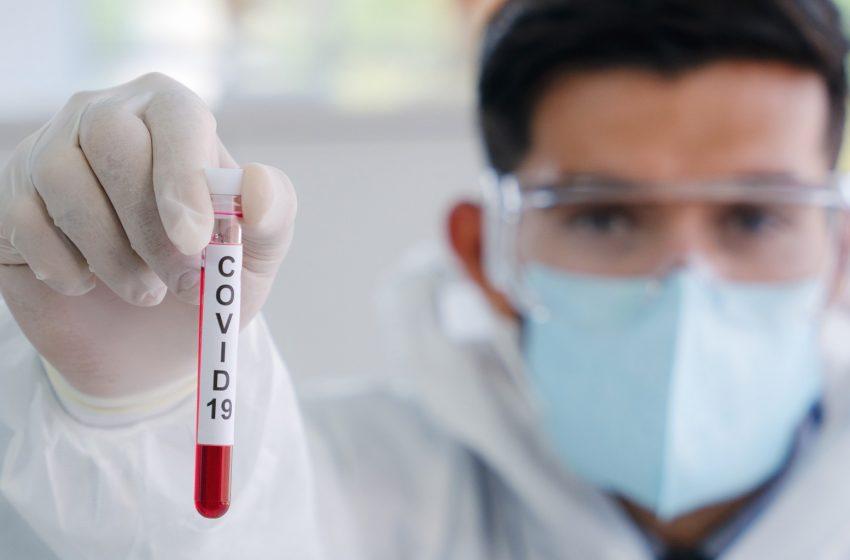 106 casos nuevos de Covid-19 se registraron en Antofagasta